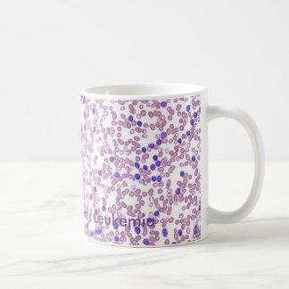 Coffee Mug- CLL Blood Pattern Basic White Mug