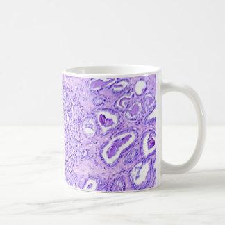 Coffee Mug-Prostate Cancer Basic White Mug