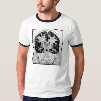 MRI Braim Tshirt