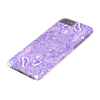 Phone Case(many models)-Prostate Cancer Cells Barely There iPhone 6 Case