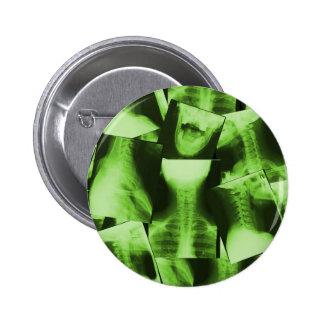 X-rayed - Radioactive Green 6 Cm Round Badge